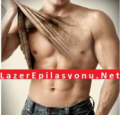 Lazer Epilasyon nedir?