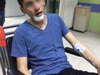 Eskil'de Çatıdan Düşen Genç Yaralandı