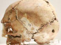 11 bin yıl önce ilk beyin ameliyatının yapıldığı Aşıklıhöyük tarihe ışık tutuyor