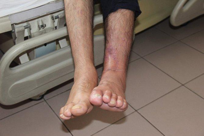 Ayağını makineye kaptırdı, 1 yıllık tedavinin ardından sağlığına kavuştu
